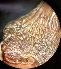 Ptychodus whipplei tooth detail