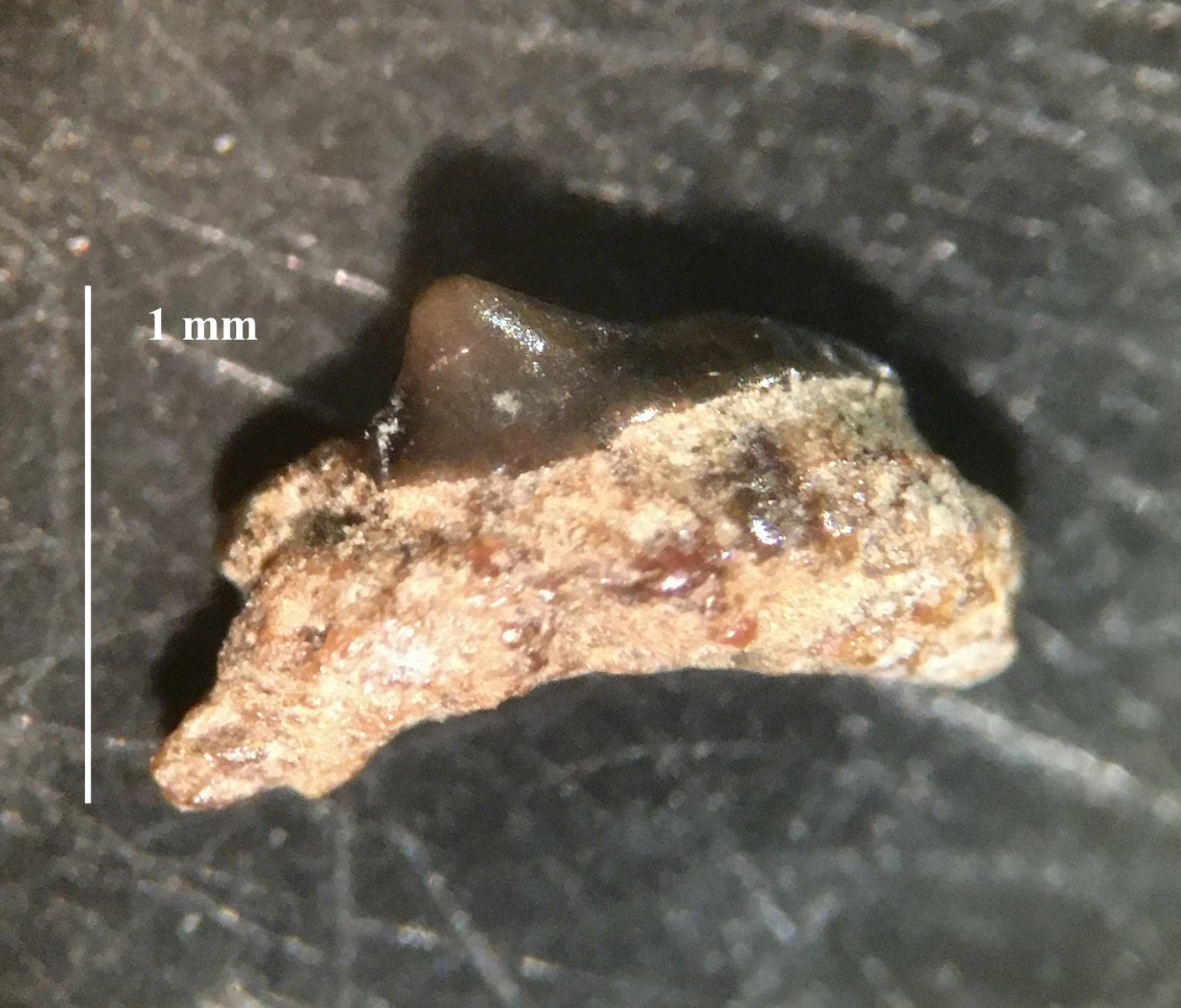 Posterior tooth